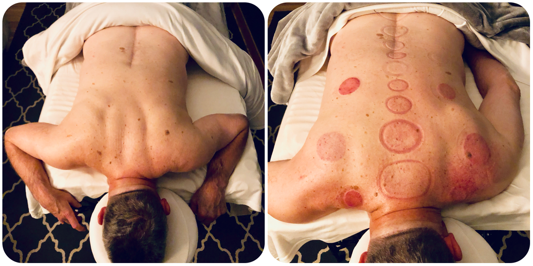 before-and-after-cupping-chronic-back-tension
